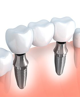 Animation of implant supported dental bridge