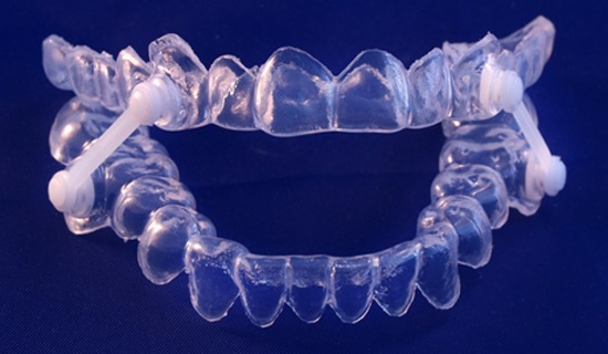 An oral appliance