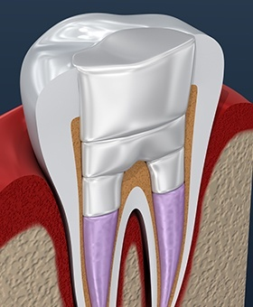 Animation of a root canal treated tooth