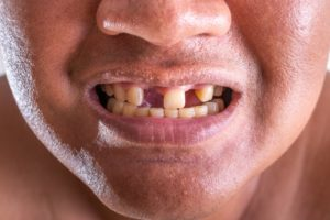 man with missing teeth